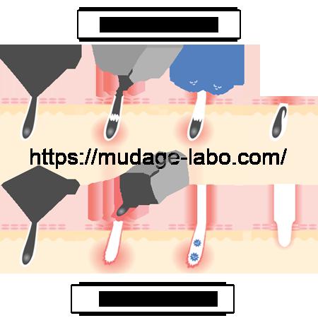 毛抜きによる肌トラブル