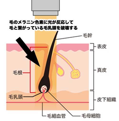 アレキサンドライトレーザーの仕組み