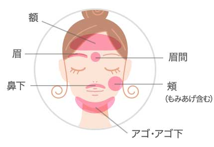 顔の脱毛範囲